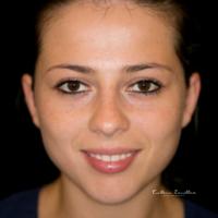 Dentalfotografie frontal Mund leicht geöffnet