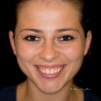 Dentalfotografie frontal Mund lachend
