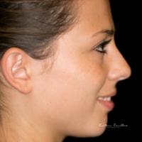 Dentalfotografie seitlich Mund leicht lächelnd