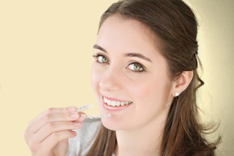 Zahnspange - gerade Zähne